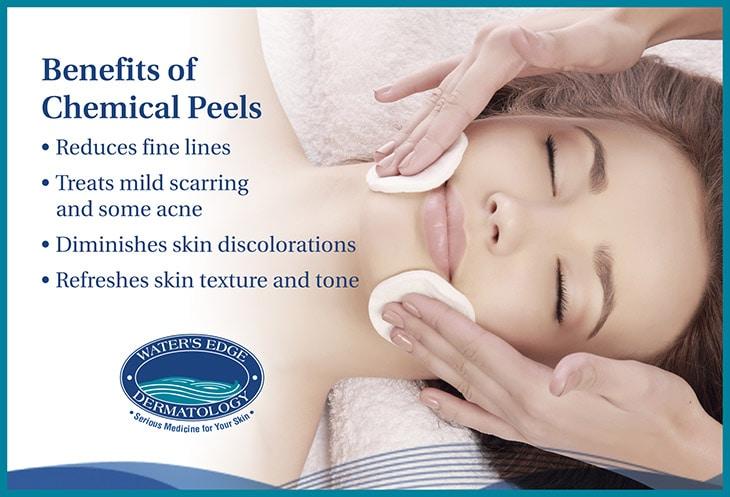 Benefits-of-chemical-peels