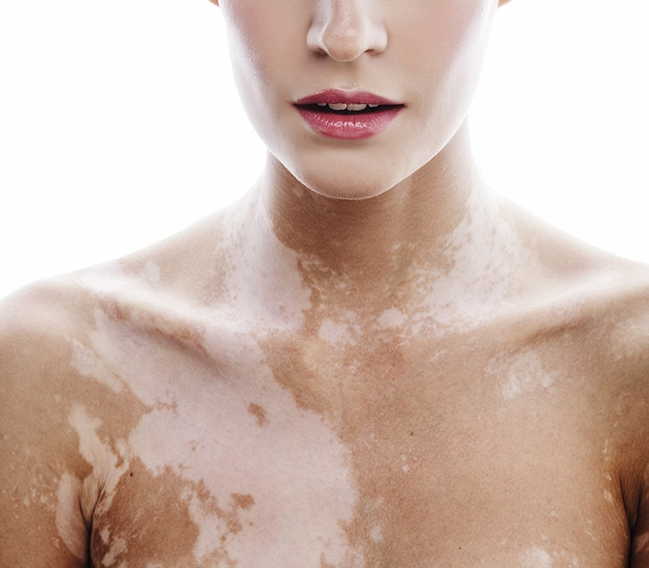 How To Get Rid Of White Spots On Skin