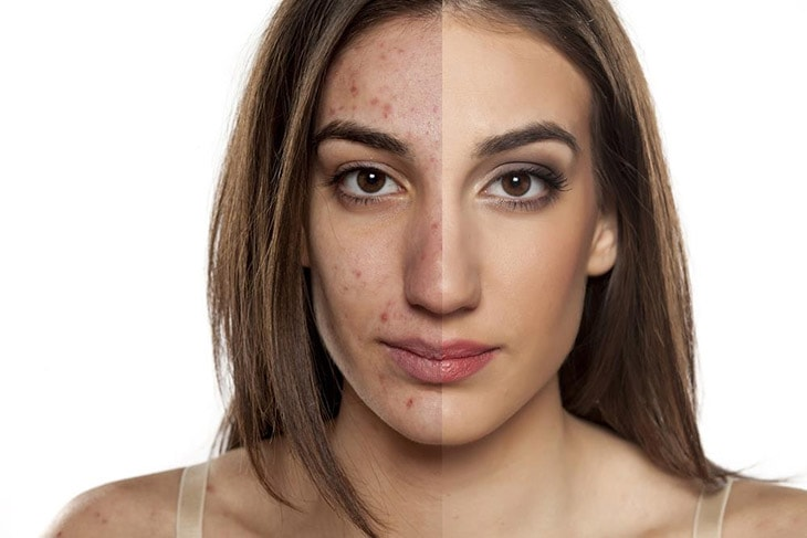 How to use bio oil for Acne Prone Skin