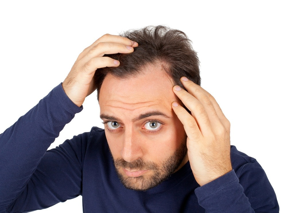 The Easy Guide on How to Fix Receding Hairline