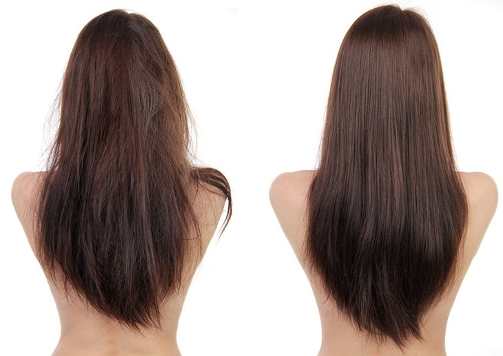 hair before and after use laser hair growth device